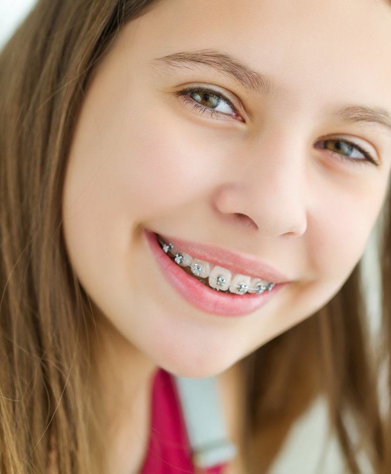 тяжело оставаться фото металлических брекетов на зубах других